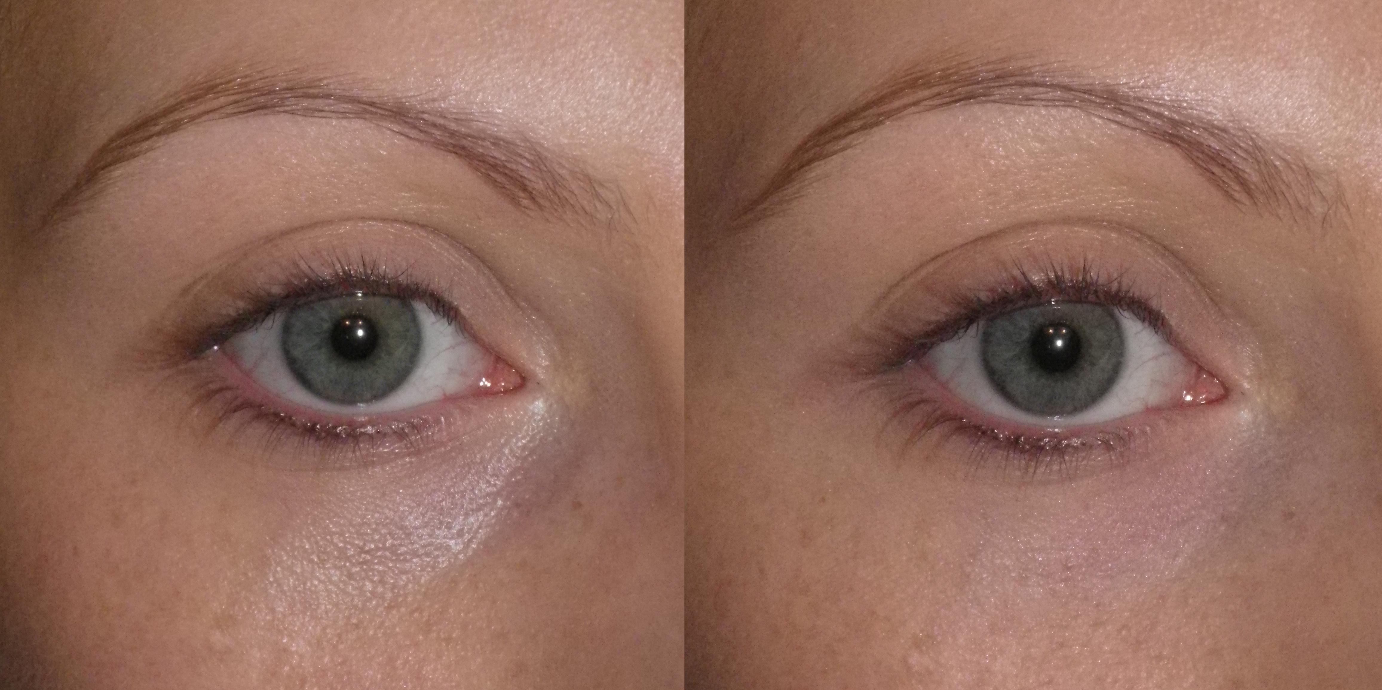 comment attenuer les rides sous les yeux